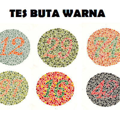 pengertian buta warna parsial