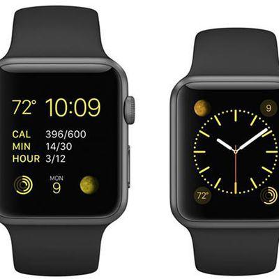 Khám phá loạt phụ kiện đồng hồ không thể thiếu với Apple Watch