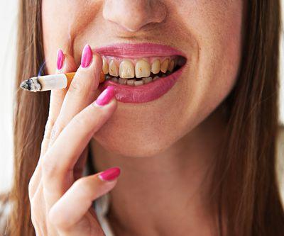 Influence du tabac sur les gencives