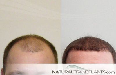 Visit our website and learn about Hair Replacement Fort Lauderdale