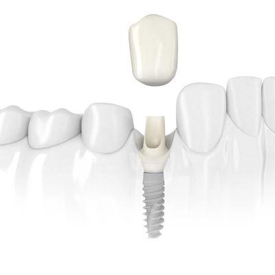 IMPLANTES DENTALES: Lo mejor en restauración dental.