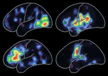 les démences organiques non-Alzheimer