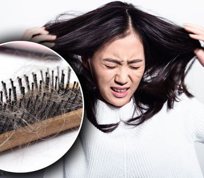 Myths & Misconceptions about Hair Loss Surgery
