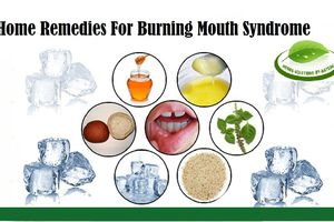 7 Home Remedies For Burning Mouth Syndrome