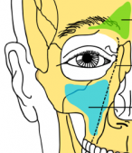 Book Excerpt: A Saga Of 'Fishy' Surgery For Chronic Sinus Trouble