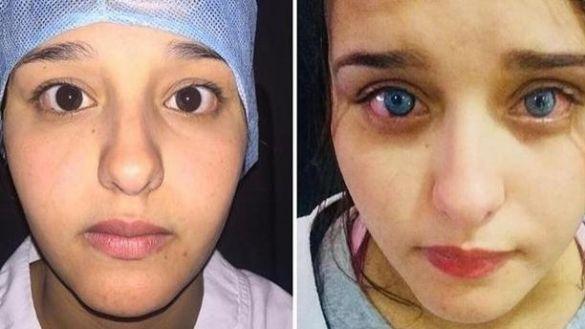 Changer de couleur de yeux