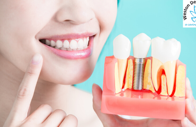 What Is Dental Implantation And It's Working?