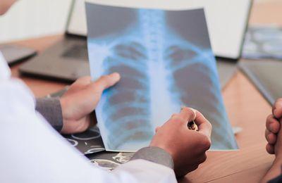 Article 18 Janvier 2021 - Medscape - Séquelles du COVID-19: la SPLF appelle à la création d'un parcours de soins dédié
