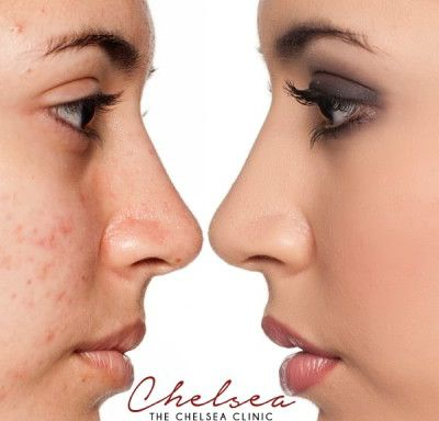 How acne scar treatment successfully removed and reduces acnes