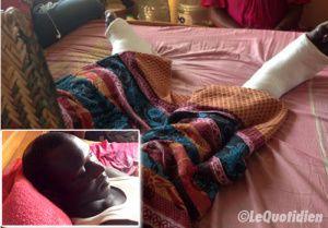 UCAD – Ses deux jambes cassées et grièvement blessé au crâne par des policiers : L'étudiant Diatta Sall raconte l'horreur