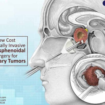 Low Cost Minimally Invasive Transsphenoidal Surgery for Pituitary Tumors