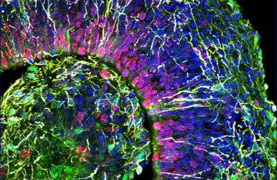 Des chercheurs mettent en garde contre les effets «dévastateurs» du coronavirus sur le cerveau