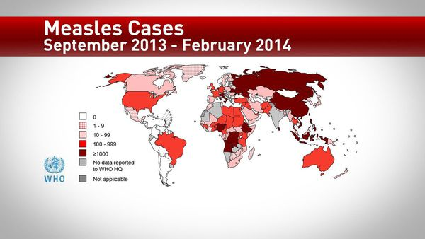 U.S. has most measles cases since 2000; Washington no exception