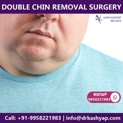Double Chin Procedure in Delhi, Double Chin Fat Removal Cost in Delhi