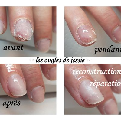 reconstruction réparation d'ongle arraché