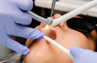 What are the Benefits of Deep Dental Cleaning?