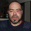 Un homme frappé dans un commissariat pour avoir sifflé «l'Internationale»