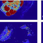 Google Deep Learning system diagnoses cancer better than a pathologist with unlimited time - OOKAWA Corp.