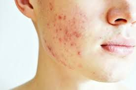 Why Professional Treatments Are A Sound Decision For Acne Cure?