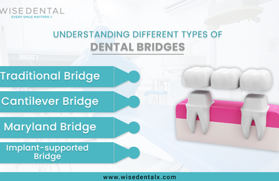 Understanding Different Types of Dental Bridges