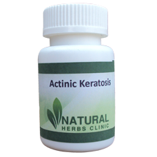 Natural Herbal Remedies For Actinic Keratosis