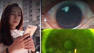 Usar el móvil con la pantalla al máximo de su brillo le ha provocado más de 500 agujeros en la córnea