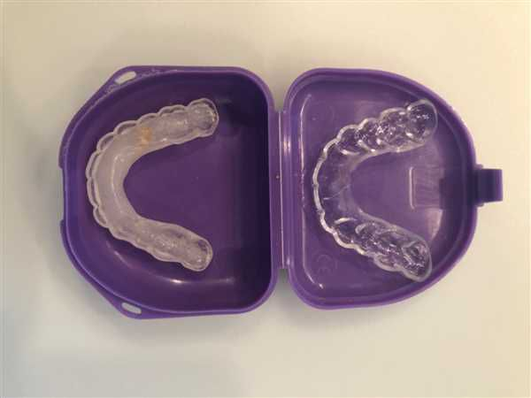 Mouth Guard For Sleeping