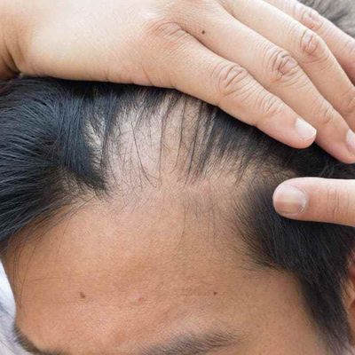 Can Telogen Effluvium lead to baldness?