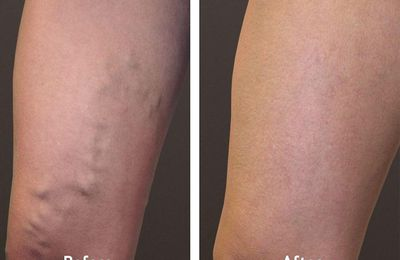 Risk Factors for Varicose Veins | Everything You Must Know