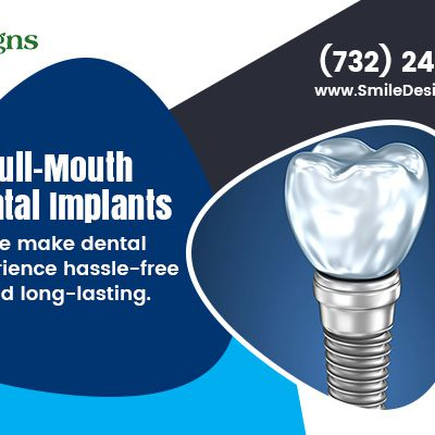 What Should You Know About Dental Implants?