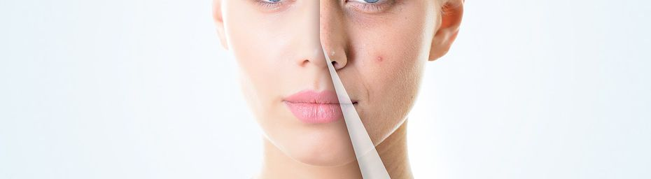 Say Hello To Acne Free Skin With These Tips