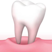 Rêver dents: Signification