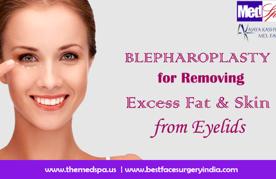 Blepharoplasty for Removing Excess Fat & Skin from Eyelids