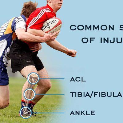 Empat Jenis Cedera Umum Pada Olahraga Rugby