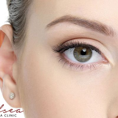 Under-eye swelling: What causes them?