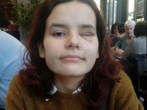 #GiletsJaunes #GueulesCassées  #LBD40 : D'Emma GROVES à Fiorina et Jérôme RODRIGUES , l'histoire peu connue des munitions non-létales qui tuent