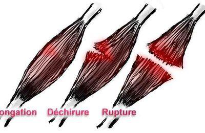 Muscles en souffrance