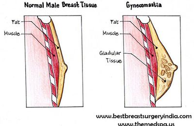 Male Breast Reduction Surgery - The Perfect Solution for Overly Large Breast Size