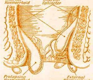 What are Internal Hemorrhoids and what can You Do about It ?