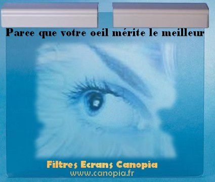 Filtre écran Canopia une protection visuelle optimale sur mesure
