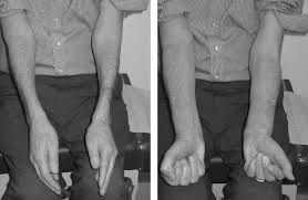 Inclusion Body Myositis Symptoms, Causes, Diagnosis and Treatment