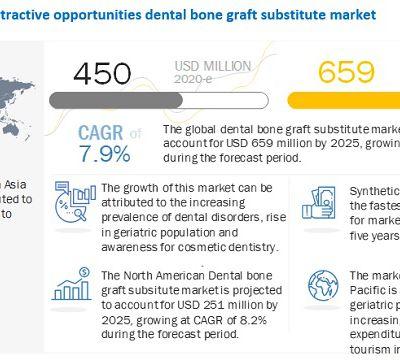 Dental Bone Graft Substitute Market Worth $659 million by 2025 - Growing Demand From Emerging Markets