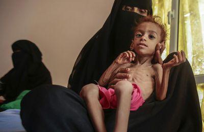 Le Yémen se dirige vers la plus grande famine de l'histoire moderne, avertit le chef du PAM au Conseil de sécurité de l'ONU (WFP)