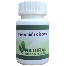 Natural Herbal Remedies For Peyronie's disease