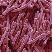 Antibiotics: US discovery labelled 'game-changer' for medicine - BBC News