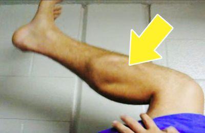Astuces pour soulager les crampes au jambes pendant la nuit