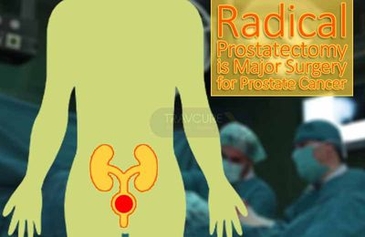 Radical Prostatectomy is Major Surgery for Prostate Cancer