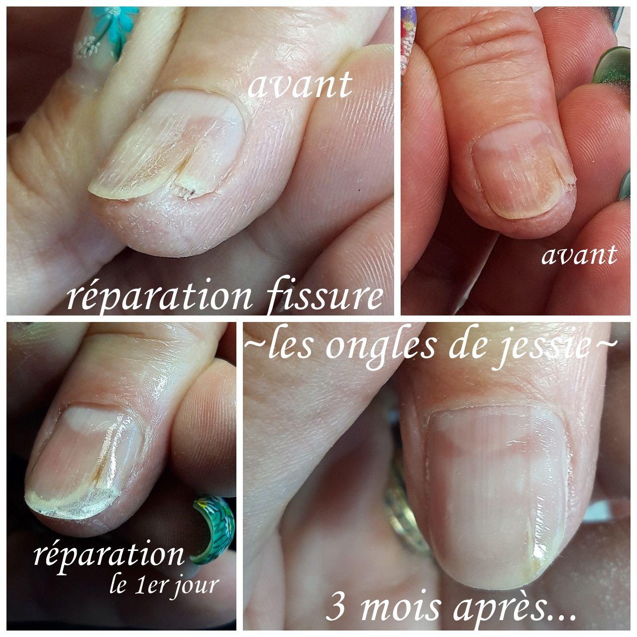 réparation d'une fissure sur ongle 3 mois apres