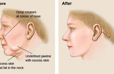 Different Types of Facelift Surgery Procedures