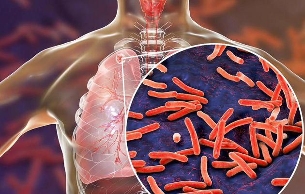 Jual Obat Herbal TBC Gangguan Kesehatan Paru - Paru Di Gunungsitoli 082226949711